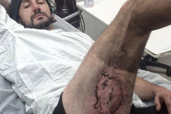 Australia. Cade dalla bici ed esplode iPhone in tasca, ustionato
